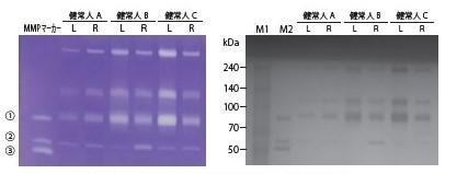ゼラチンザイモグラフィーによる涙液中のMMP活性