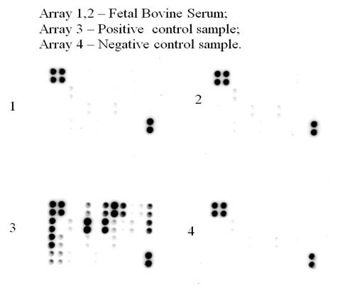 抗体アレイ測定例「FBSサンプル、ポジコン、ネガコン」