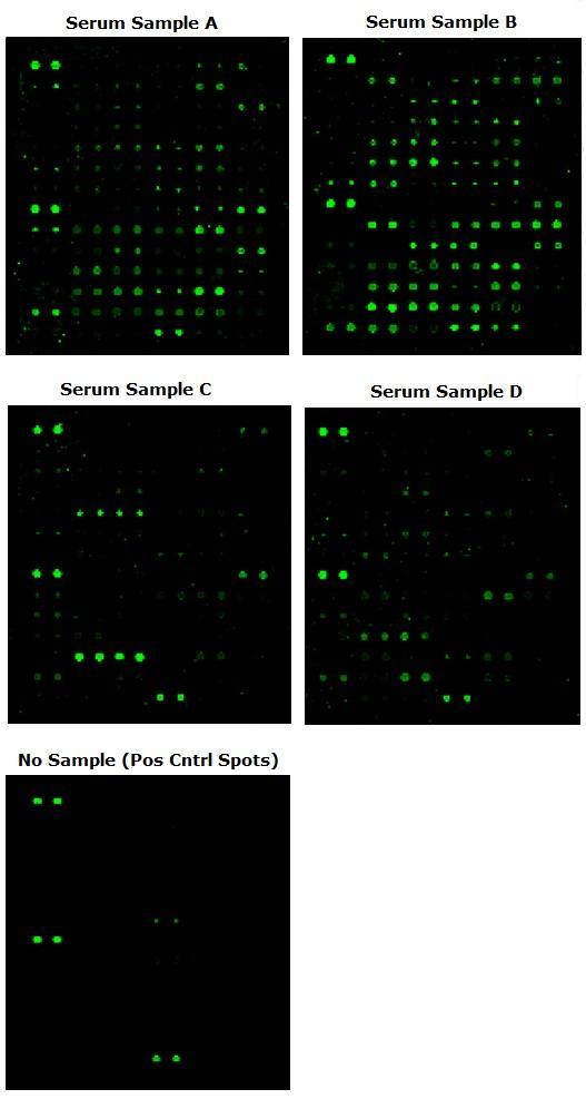 レクチンアレイを使用た血清中の糖タンパク質の解析