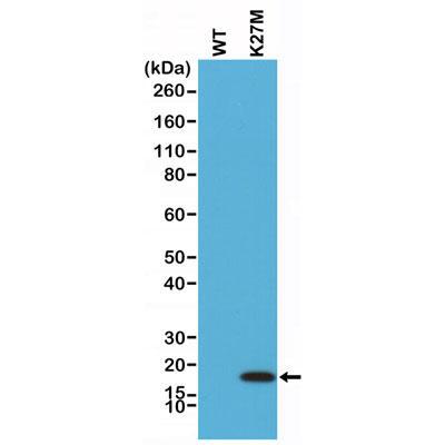 293T細胞を用いたウェスタンブロット図