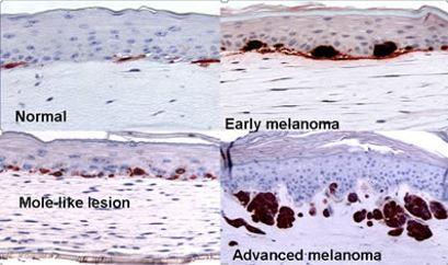 皮膚合成におけるメラノーマ形成