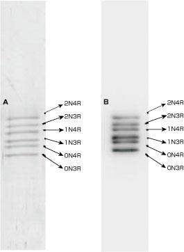 タウタンパク質ラダー(品番T-1007-1)の電気泳動(A)とイムノブロット(B)