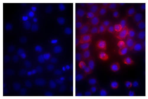 ヒト膵がん細胞株MIA PaCa-2