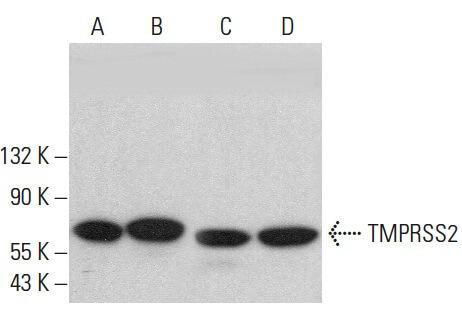 TMPRSS2の発現解析