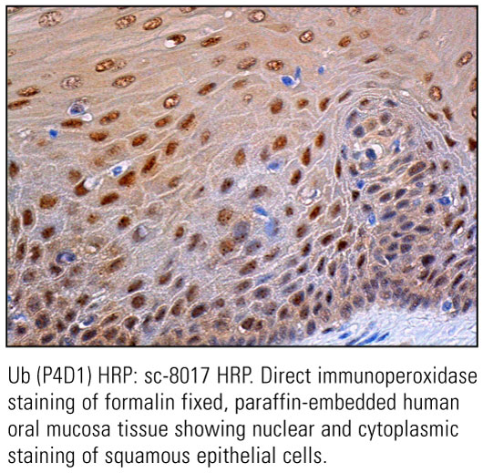 SCB_Direct-HRP-Conjugate-IHC-Staining_10.jpg