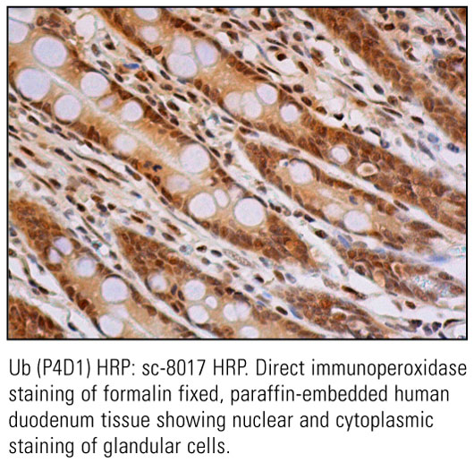 SCB_Direct-HRP-Conjugate-IHC-Staining_11.jpg