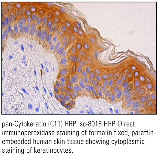 SCB_Direct-HRP-Conjugate-IHC-Staining_12.jpg