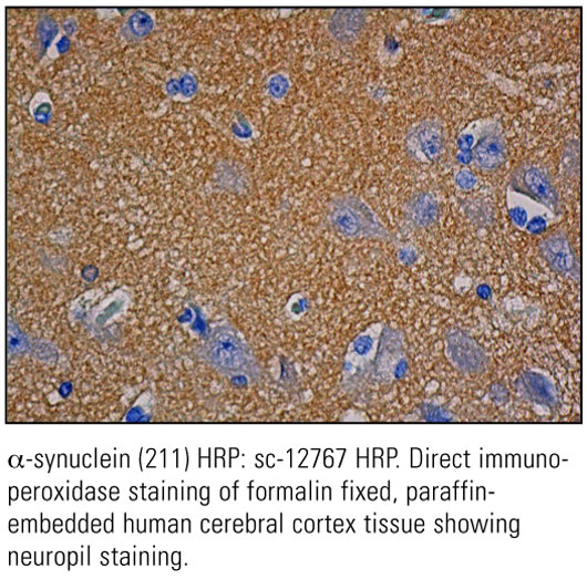 SCB_Direct-HRP-Conjugate-IHC-Staining_16.jpg