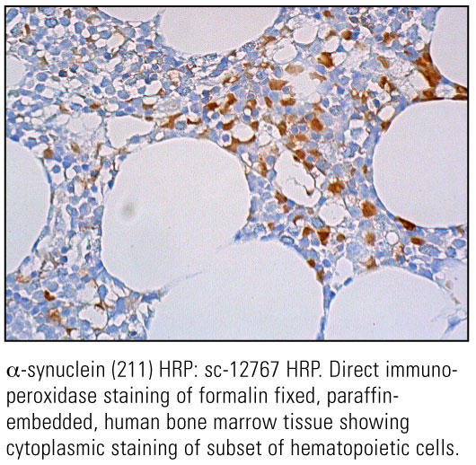 SCB_Direct-HRP-Conjugate-IHC-Staining_17.jpg