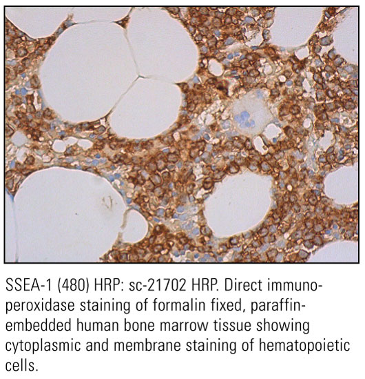 SCB_Direct-HRP-Conjugate-IHC-Staining_20.jpg
