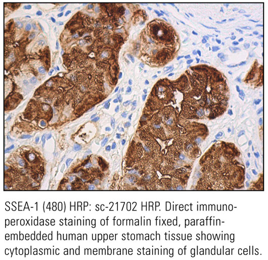 SCB_Direct-HRP-Conjugate-IHC-Staining_21.jpg