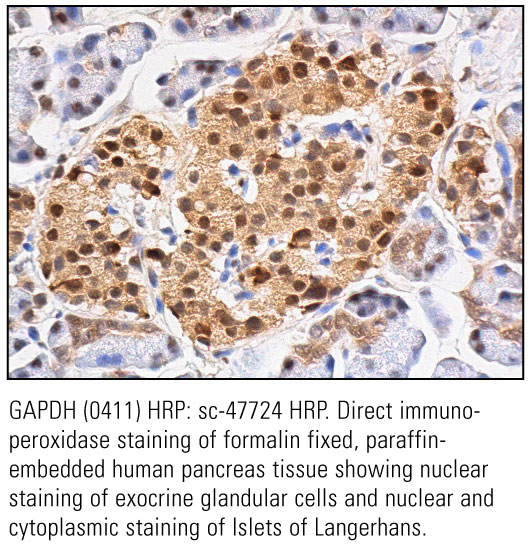 SCB_Direct-HRP-Conjugate-IHC-Staining_25.jpg