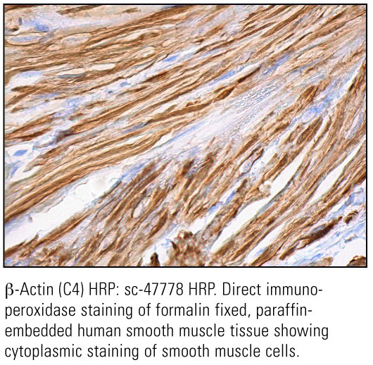 SCB_Direct-HRP-Conjugate-IHC-Staining_28.jpg