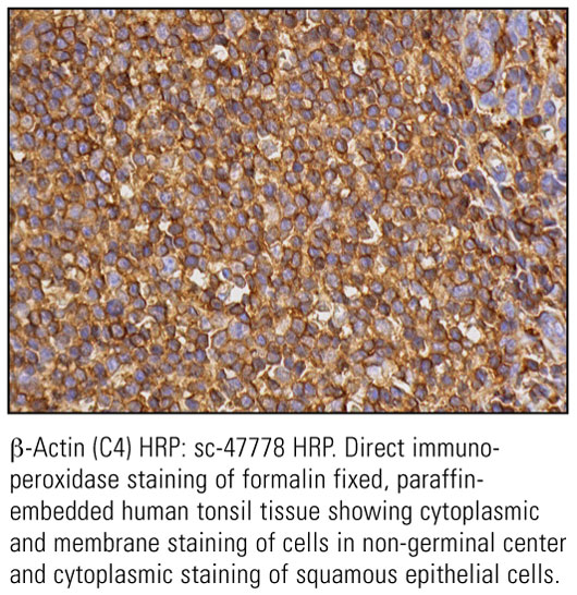 SCB_Direct-HRP-Conjugate-IHC-Staining_29.jpg