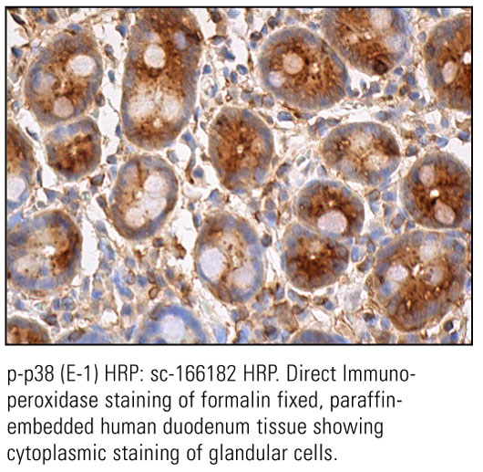 SCB_Direct-HRP-Conjugate-IHC-Staining_31.jpg
