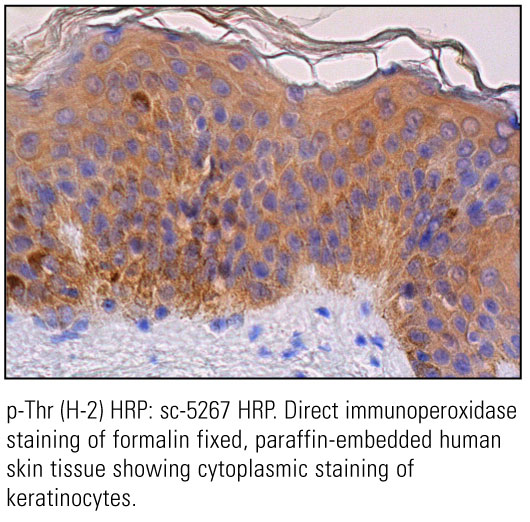 SCB_Direct-HRP-Conjugate-IHC-Staining_6.jpg