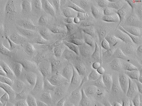 Relief contrast, 400x.
