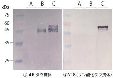 SH-SY5Y 細胞(ヒト神経芽腫細胞) とTAU01 を用いたウェスタンブロットによるタウの検出