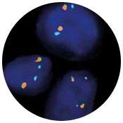 ZytoLight(R) SPEC ALK/EML4 TriCheck(TM) Probe
