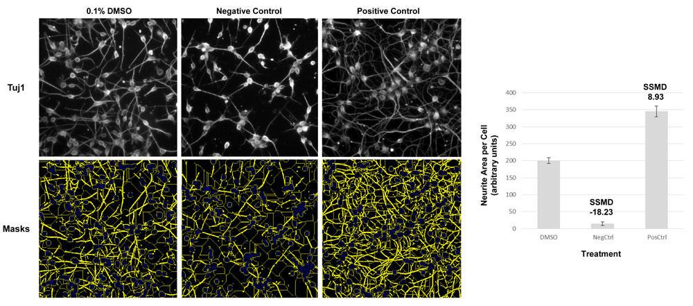 iPSニューロンを用いた神経突起伸長測定