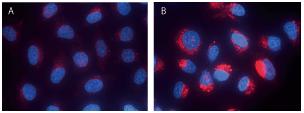 未処理 (A)、クロロキン処理細胞 (B) の蛍光顕微鏡画像