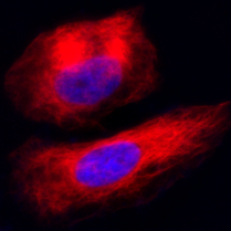 organelles_fluorescence_probe_abd_06.png
