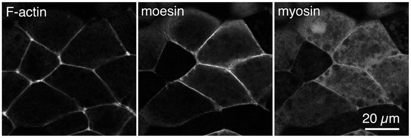 SiR-Actin キットを用いたアフリカツメガエル胚外胚葉上皮のアクチンフィラメント(左)、モエシン(中)、ミオシン(右)の三重染色画像