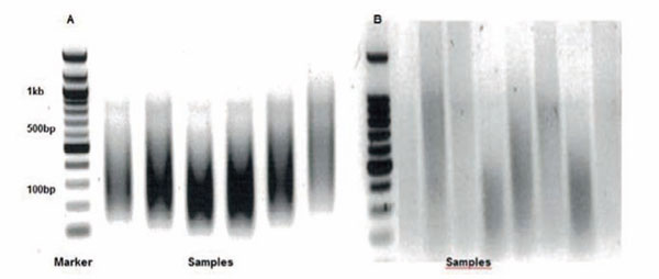 PVS_ChIP_assay_tips_1.jpg