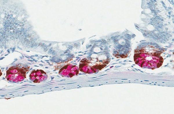RNAscope® と IHC との共染色例