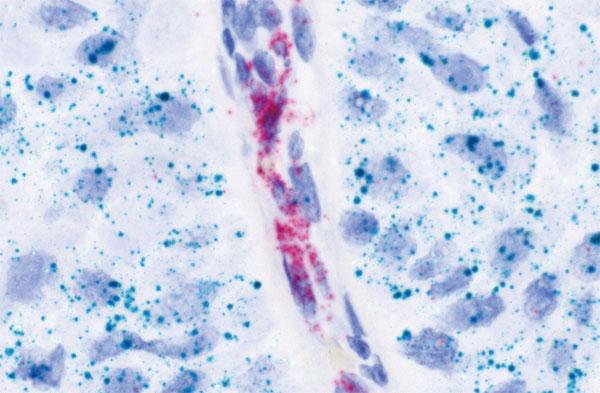 ヒト乳がんFFPE 切片のPECAM1(赤色)および EGFR(緑色)mRNA の検出