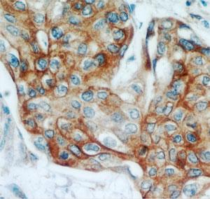 Proteintech社の KRT13 ポリクローナル抗体(品番: 10164-2-AP)を用いた、ホルマリン固定パラフィン包埋した子宮頸癌の免疫組織染色(40×)